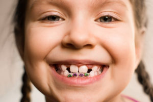 Your Child Is Missing a Permanent Tooth | Children's Dental
